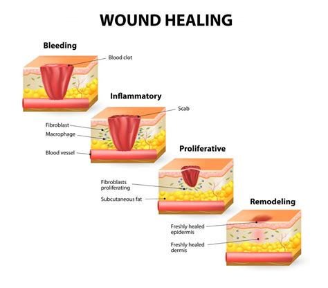 Why Do Healing Wounds Itch Science Abc