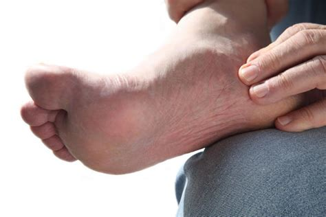 Does Arthritis Cause Swollen Feet Andankles? Doctor