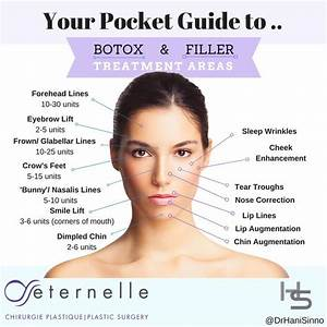 Botox Injection Sites Face Diagram New