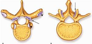 Imaging Of Thoracolumbar Spinal Injury
