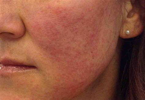 Dermatology - Most Common & Most Severe Conditions & It's