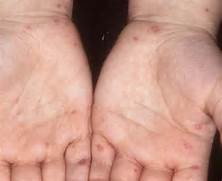 Hand  foot  and mouth diseas                                            Hand Foot And Mouth Disease On Feet