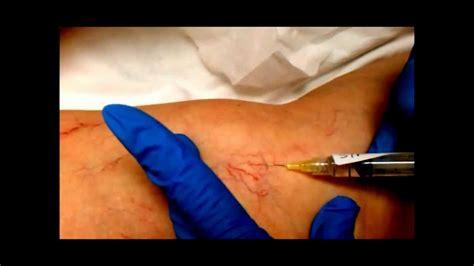 sclerotherapy injection procedure spider veins  vein