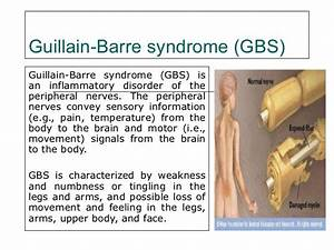 Spinal claudica... Guillain Barre Syndrome