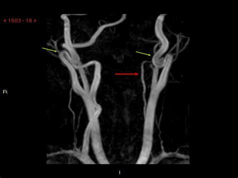 Kinking Carotide Interna Sintomi Sindrome Di Wallenberg In Et 224 Pediatrica