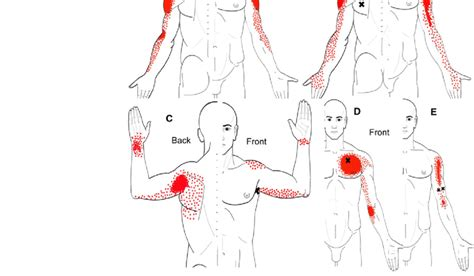 Referred pain patterns from supraspinatus (a ...