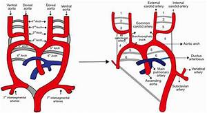 Congenital Anomalies Of The Aortic Arch