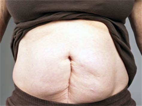 post c section tips to reduce post c section belly boldsky