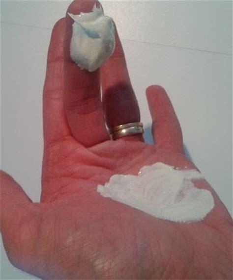 mycose bébé siège peau de bébé fesses rouges oxyde de zinc et calamine