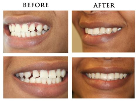 how to fix gap between fixing the gaps between your teeth at anthony martin dentistry