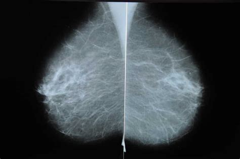 Some medical professionals recommend other services, such as screening mris for. Expanded Coverage for Diagnostic Mammograms By Hope Placher, PA-C | Couri Center