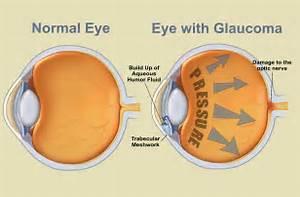 Glaucoma Cataract  Glaucoma Cataract