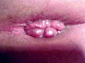 Thrombosed Hemorrhoid Pictures | Hemorrhoid