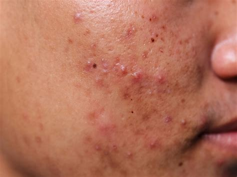Close Up Photos Of Acne Will Change The Way You Think
