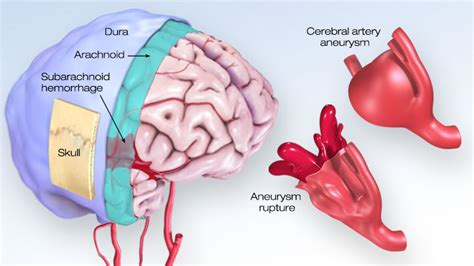subarachnoid hemorrhage symptoms treatment stroke