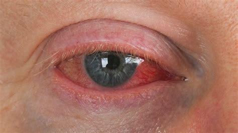 augengrippe auf dem vormarsch  diesen symptomen ist sie