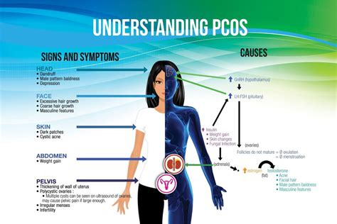 Pcos Definition Symptoms Cause And Treatment From Pain