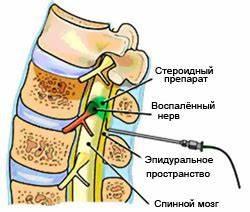 Таблетки и уколы при лечение шейного и грудного остеохондроза