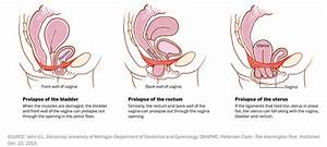 Everything You Need To Know About Pelvic Organ Prolapse