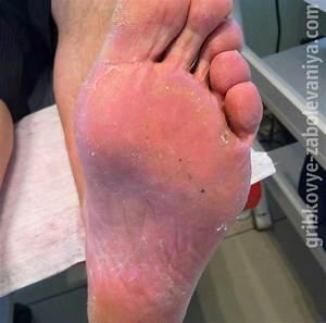 Кожные заболевания грибок ногтей