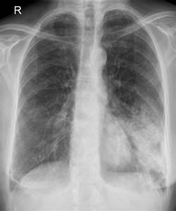 Left lower lobe pneumonia, from Wikimedia Commons Pneumonia