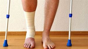 Sprain Or Snap  How To Tell If It Really Is A Broken Bone