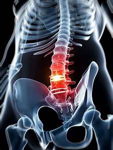 lumbar herniated disk treatment