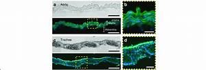 Tissue Characteristics Of The Aorta And Trachea  A