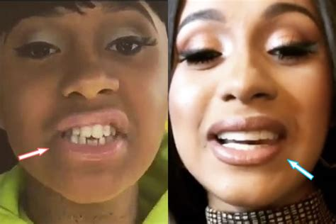 Cardi B Plastic Surgery REVEALED! (Before & After Photos 2018)