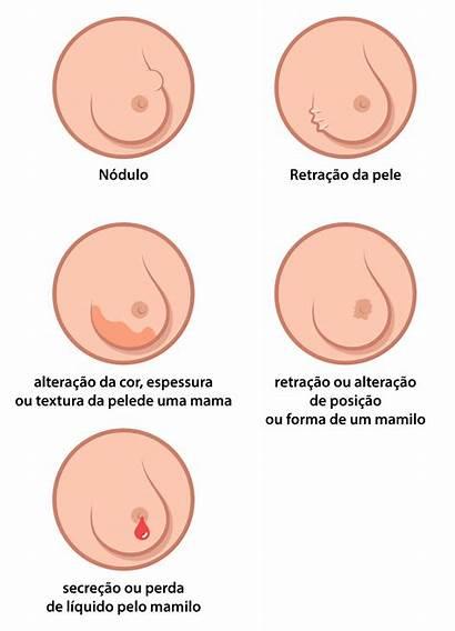 Cancer Mama Papiloma Breast Seno Tumor Wikipedia