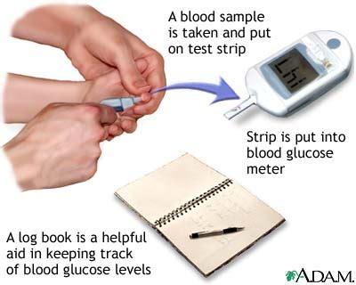 blood glucose monitoring  symptoms treatment