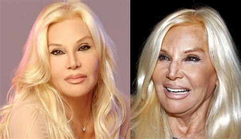 Famosas argentinas con exceso de Photoshop: impactantes ...