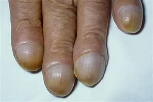 Грибок ногтя признаки и лечение