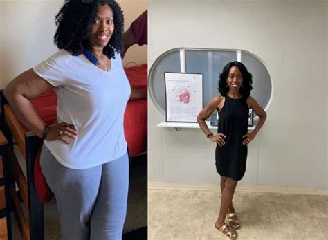 Insurance coverage for weight loss surgery varies by state and insurance provider. Gastric Sleeve Self Pay Options | Arch Bariatrics
