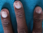Splinter hemorrhages causes, what it looks like, diagnosis ...