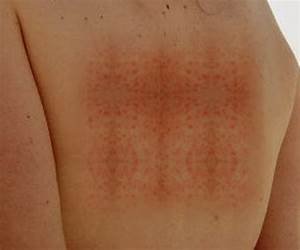 The gallery for --> Measles Rash Adult