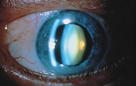 nuclear sclerotic cataract american academy  ophthalmology