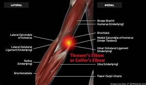 Thrower U2019s Elbow Or Golfer U2019s Elbow  Medial Epicondylitis  Medial Elbow Tendinosis   U2013 Thermoskin