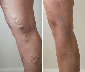 Best Treatment for Varicose Veins, Most effective ...