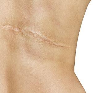 scar revision treatment kent  scar revision surgeon