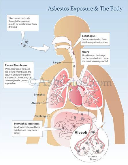 mesothelioma asbestos images diagrams graphs