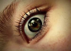 Partial Heterochromia by XxNaomi-LukarixX on DeviantArt