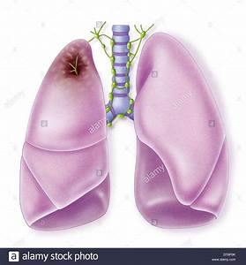 Image Gallery lung cancer drawing