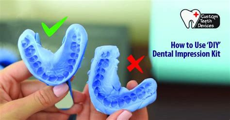 """How To Use The """"do It Yourself""""(diy) Dental Impression Kit"""