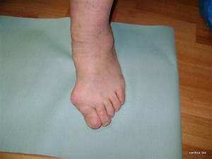 Лечение отека ног при диабете