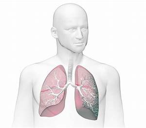 What Is Idiopathic Pulmonary Fibrosis  Ipf