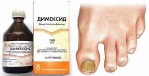Ирунин грибок ногтей лечение