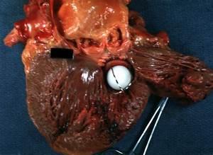 Cardiac Tamponade Pathophysiology