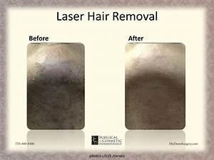 Laser Hair Removal Newnan