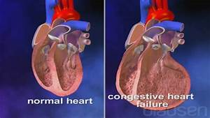 Heart Failure - Heart And Blood Vessel Disorders